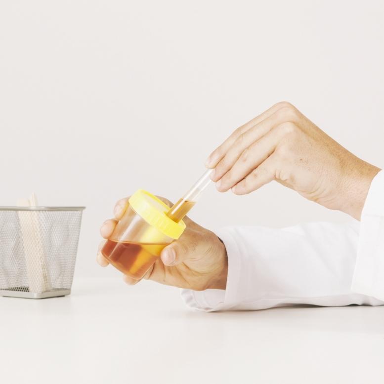 esame-urine-farmacia-portuensi
